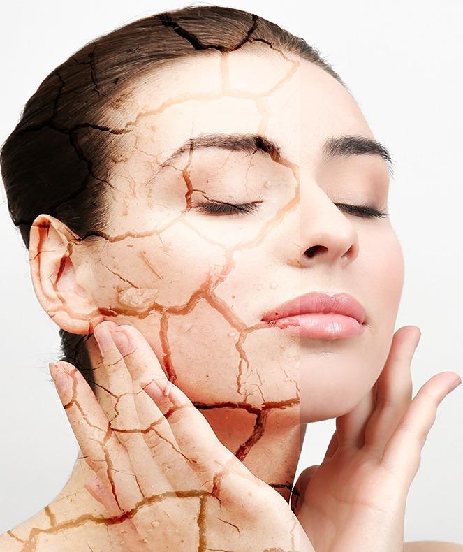 نحوه شناخت و مراقبت از پوست خشک
